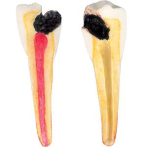第2小臼歯:歯髄まで進行した虫歯