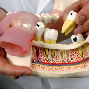 すべての歯,歯茎は取外し可能です