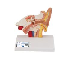 平衡聴覚器,1.5倍大モデル