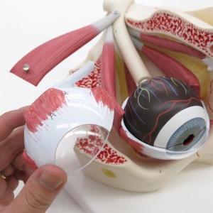 網膜線維膜:上部の取り外し