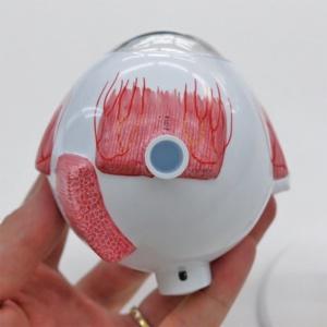 眼球線維膜:下側より