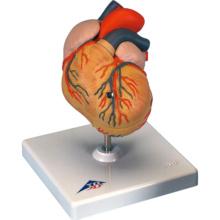 心臓,左心室肥大・2分解モデル