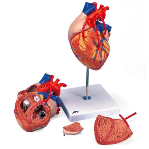 心臓,バイパス付,2倍大・4分解モデル