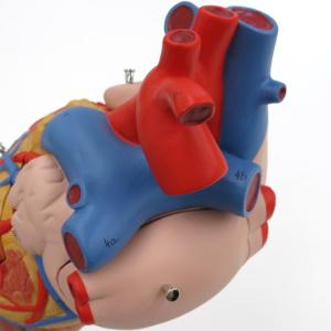 上大静脈,大動脈,肺動脈など