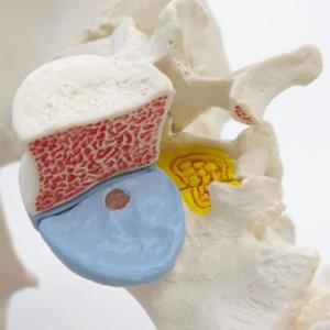第5腰椎の左半分を取外した状態