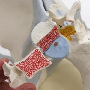 第5腰椎の左半分は取外せます