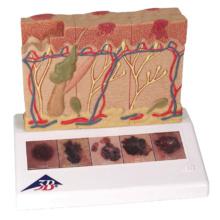 皮膚癌モデル