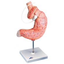 胃バンディングモデル,2分解