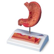 胃潰瘍モデル