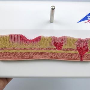 胃壁の様々な状態を確認できます