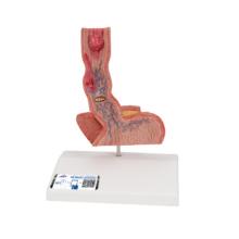 食道疾患モデル