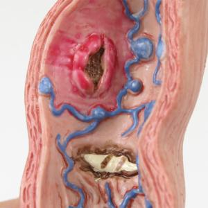 バレット食道・食道潰瘍