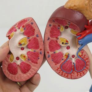 右腎臓:断面を確認できます
