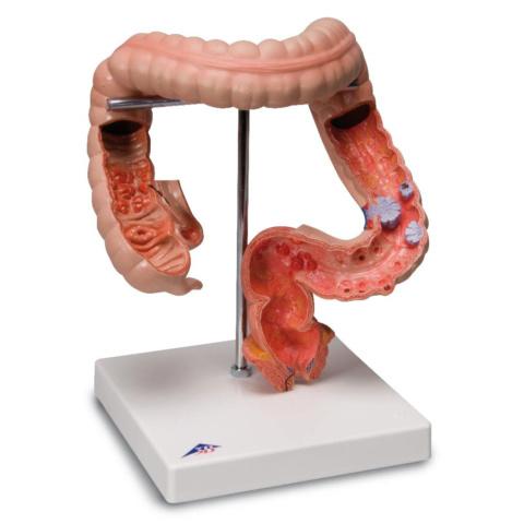 腸疾患モデル