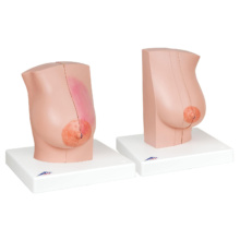 乳房疾患モデル(左右セット,授乳期・非授乳期)