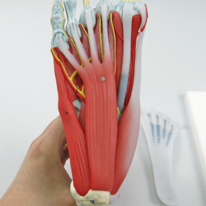 足底腱膜を取外した状態