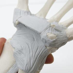 手根骨・中手骨の靭帯(掌側)