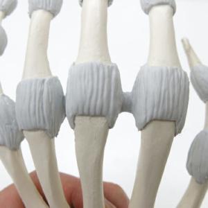 中手指節関節の関節包と側副靭帯