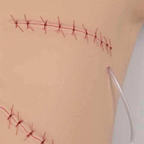 乳房切除創