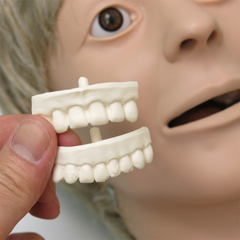 義歯の取り外し