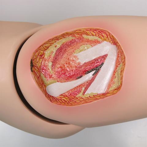 ステージ4の褥瘡:大腿部