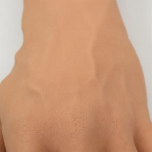 手背静脈網