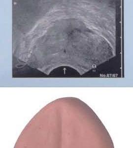 正常な前立腺