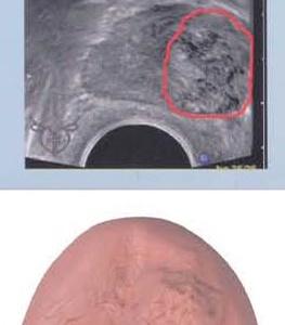 進行性前立腺がん