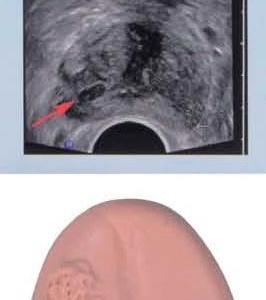前立腺がん初期