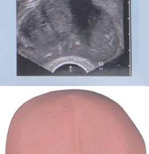 前立腺肥大-BPH
