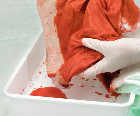出血量の目測:最大1.5Lの出血量