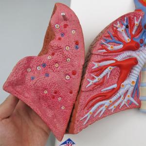 右肺:気管支や肺静脈・肺動脈など