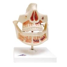 成人歯列モデル