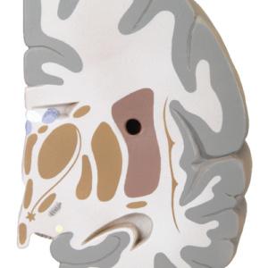 左脳:前額断3