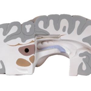 右脳:水平断4(海馬などを確認できます)