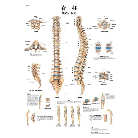 医学チャート「脊柱」A3