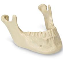 ORTHObones 歯牙付き下顎