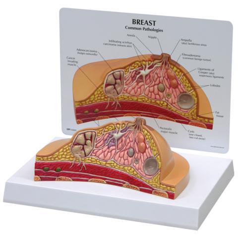 乳房疾患モデル