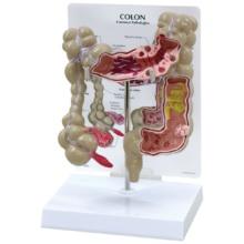 結腸疾患モデル