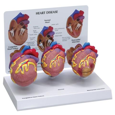 心臓疾患モデル