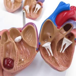 心筋梗塞モデル