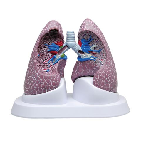 肺疾患モデル