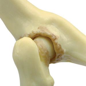変形性関節症を再現した股関節