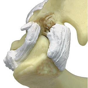 変形性関節症を再現した肩