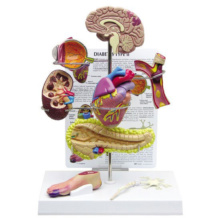 2型糖尿病モデル