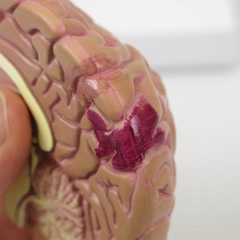 脳虚血(薄),脳梗塞(濃)