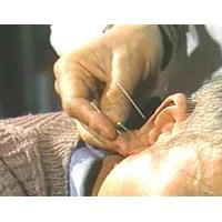 中国鍼灸療法