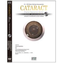DVD 白内障超音波乳化吸引法 DO Vol.2