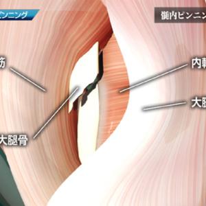 髄内ピンニング 1