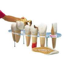 歯科形態学シリーズ,10倍大・7分解モデル,英語